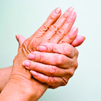 Treating Carpal Tunnel Syndrome at Kansas City Bone and Joint Clinic