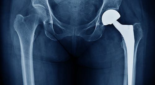 Signature Medical Group Orthopedic Joint Replacement