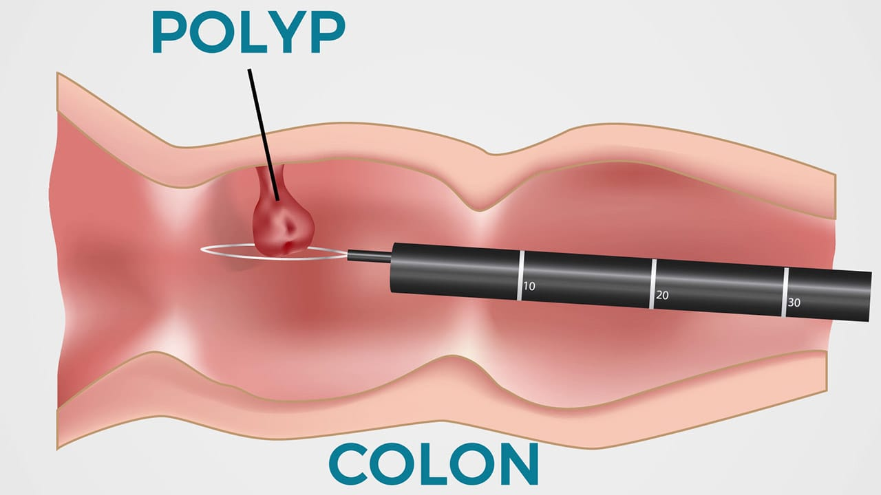 Colon cancer removal diagram