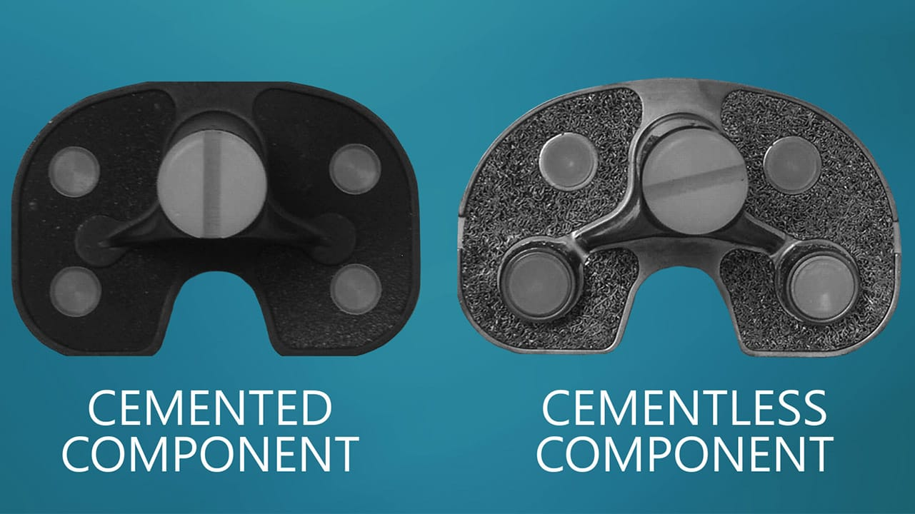 Cemented vs. Cementless replacement components